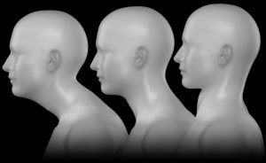 three examples of forward head Posture as it is correcting